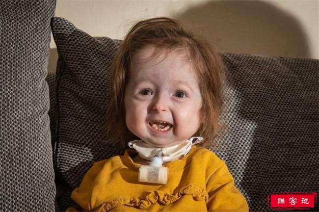 2岁女童面容衰老 患本杰明·巴顿病让人心疼