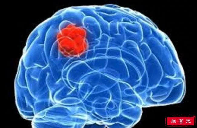 十大致命类型的癌症 都是很难治愈的癌症