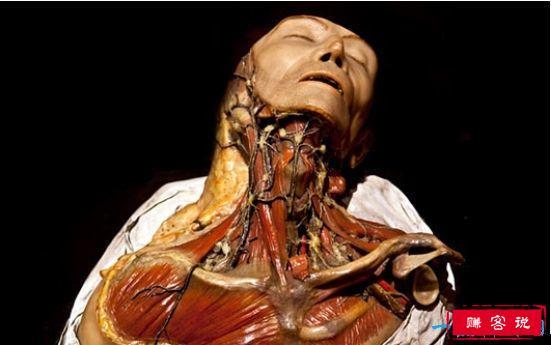 世界上最恐怖的博物馆,存放畸形人遗体最多的马特博物馆